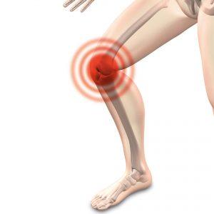 http://www.orthopädie-dr-trebing.de/arthrose-therapie/